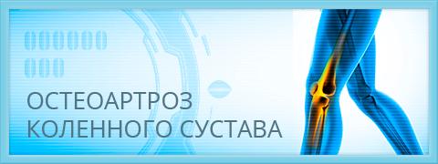 Изображение - Положении суставы неподвижны подтянутом monitor_02_osteoparoz_kolenka