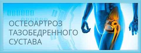 Изображение - Положении суставы неподвижны подтянутом monitor_03_osteoartroz_taz