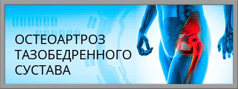 Изображение - Положении суставы неподвижны подтянутом monitor_03_osteoartroz_taz_active